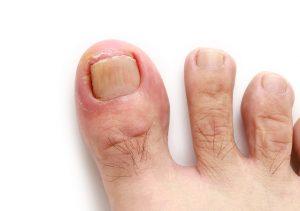 Ingrown Toenail Nail Surgery