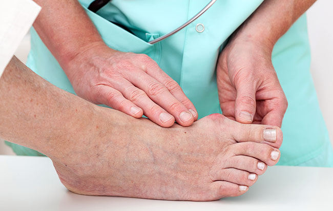Bunions: Misconceptions Debunked